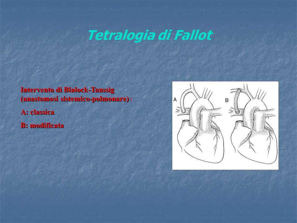 Tetralogia di Fallot Intervento di Blalock-Taussig (anastomosi sistemico-polmonare) : A: classica.