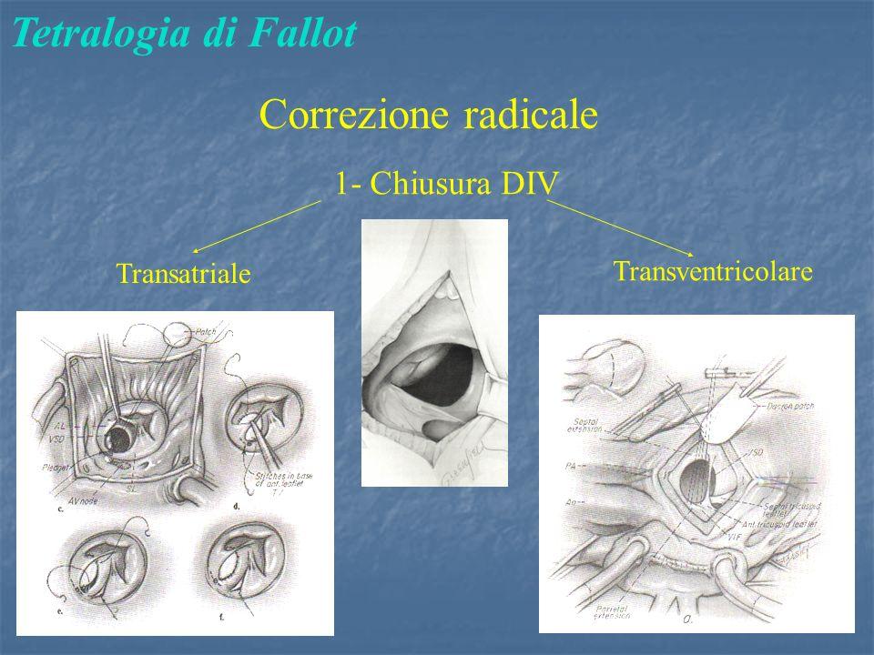 Tetralogia di Fallot Correzione radicale 1- Chiusura DIV Transatriale