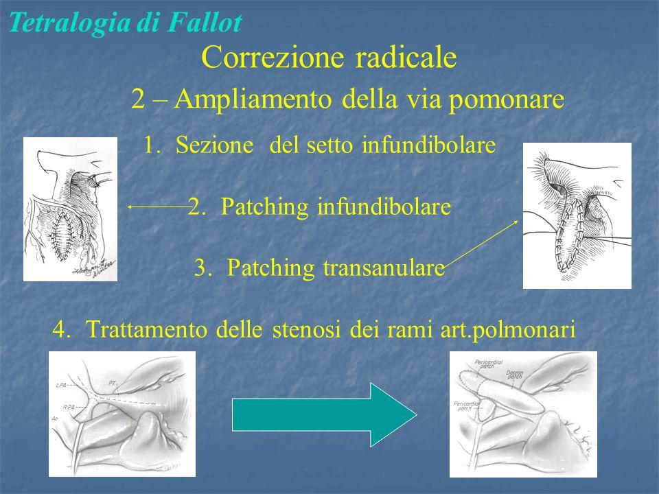 Correzione radicale Tetralogia di Fallot