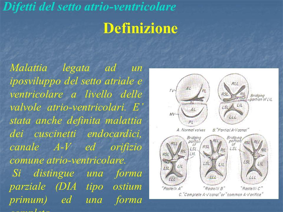 Definizione Difetti del setto atrio-ventricolare