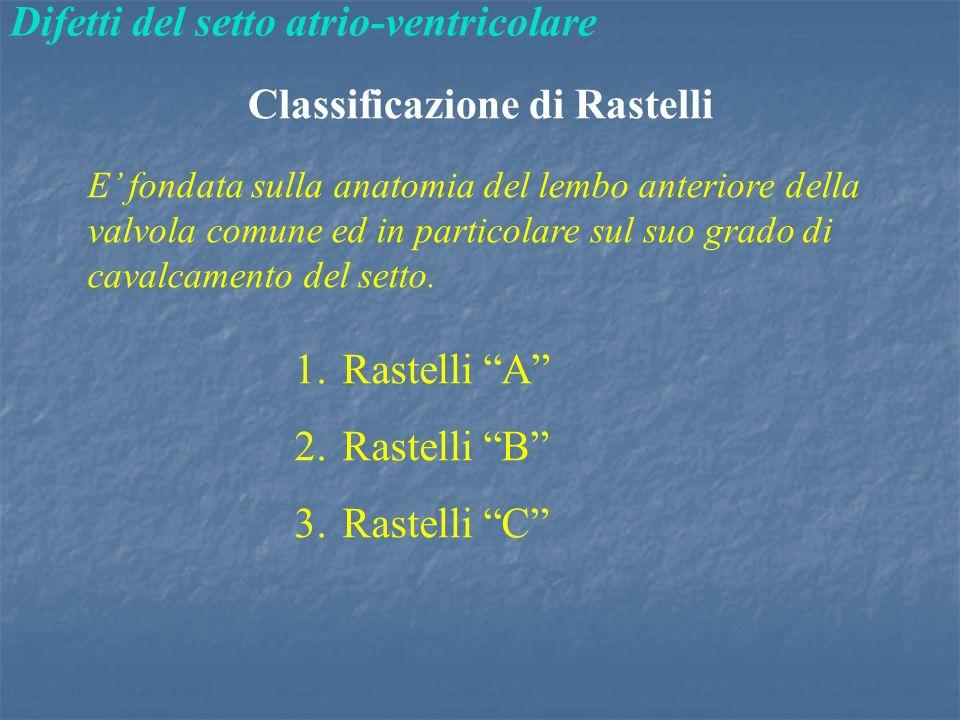 Classificazione di Rastelli