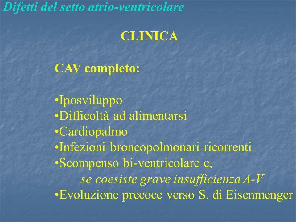 Difetti del setto atrio-ventricolare