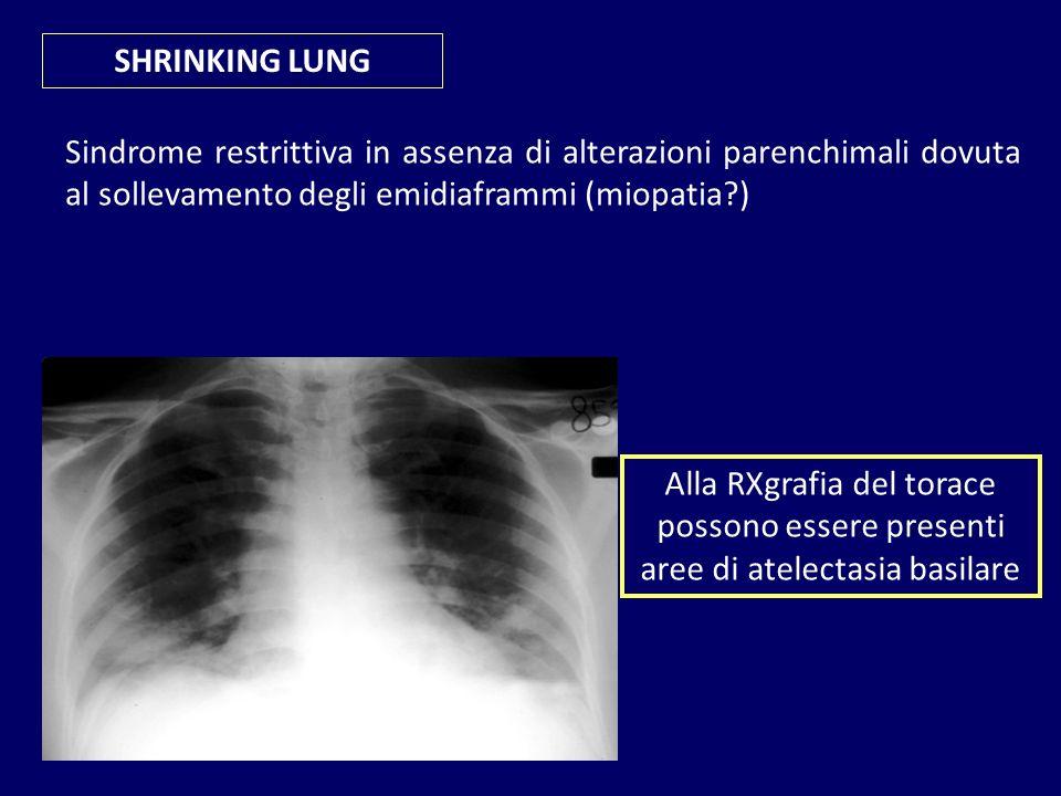 SHRINKING LUNG Sindrome restrittiva in assenza di alterazioni parenchimali dovuta al sollevamento degli emidiaframmi (miopatia )
