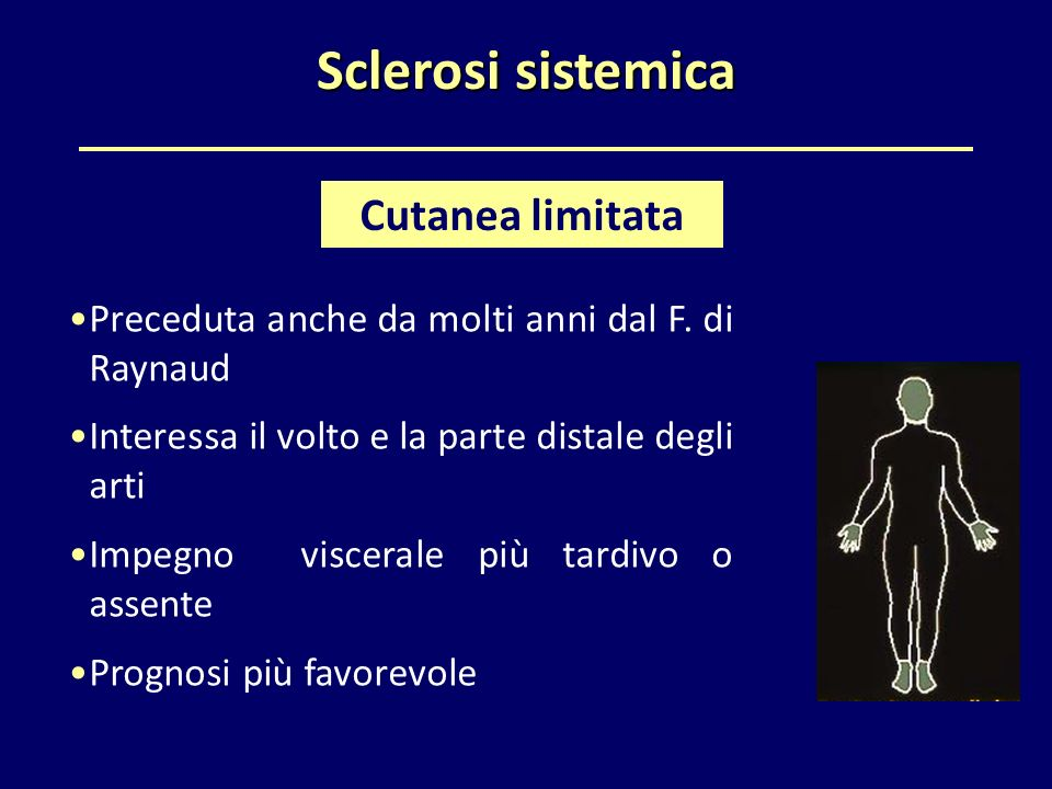 Sclerosi sistemica Cutanea limitata