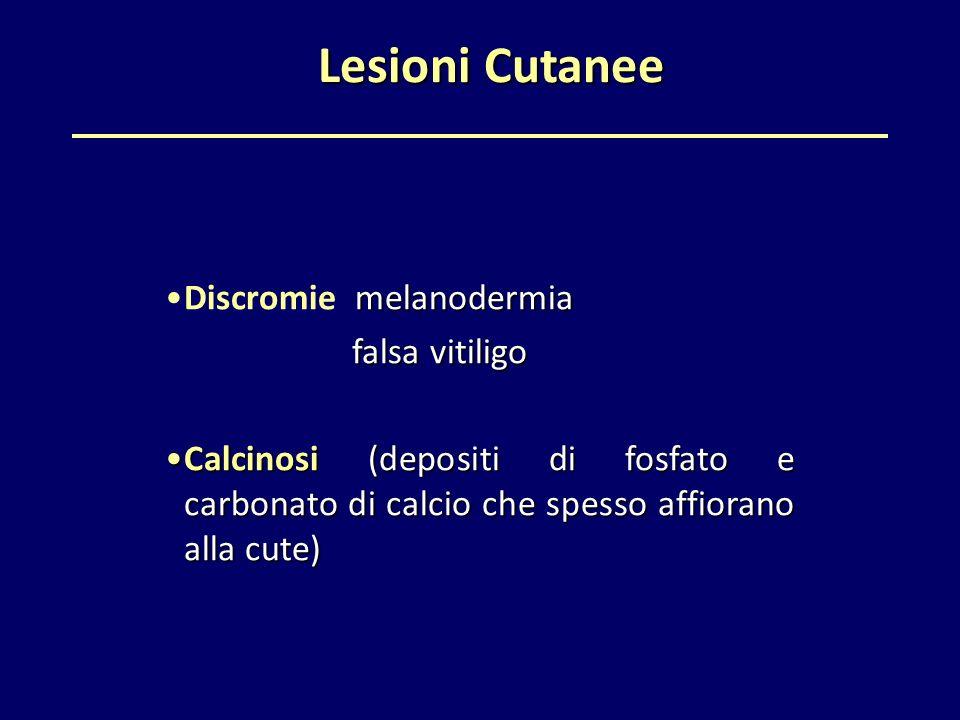 Lesioni Cutanee Discromie melanodermia falsa vitiligo