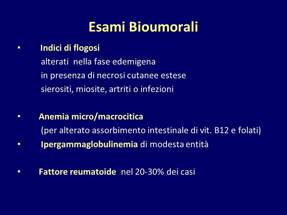 Esami Bioumorali Indici di flogosi alterati nella fase edemigena