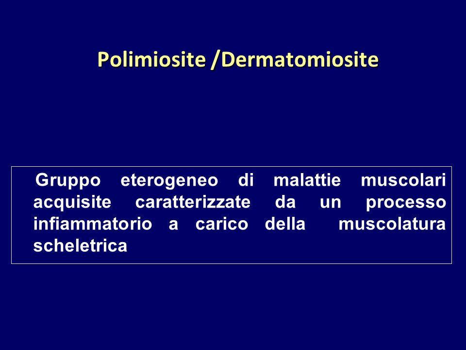 Polimiosite /Dermatomiosite