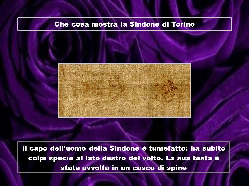 Che cosa mostra la Sindone di Torino