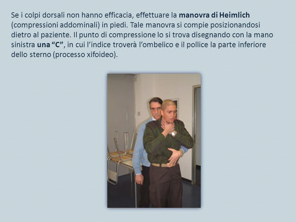 Se i colpi dorsali non hanno efficacia, effettuare la manovra di Heimlich (compressioni addominali) in piedi.