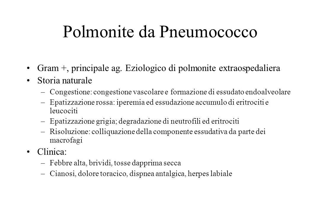 Polmonite da Pneumococco