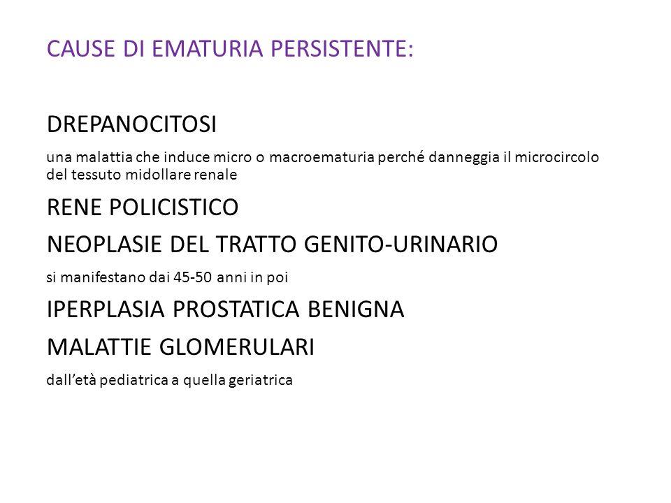 CAUSE DI EMATURIA PERSISTENTE: DREPANOCITOSI