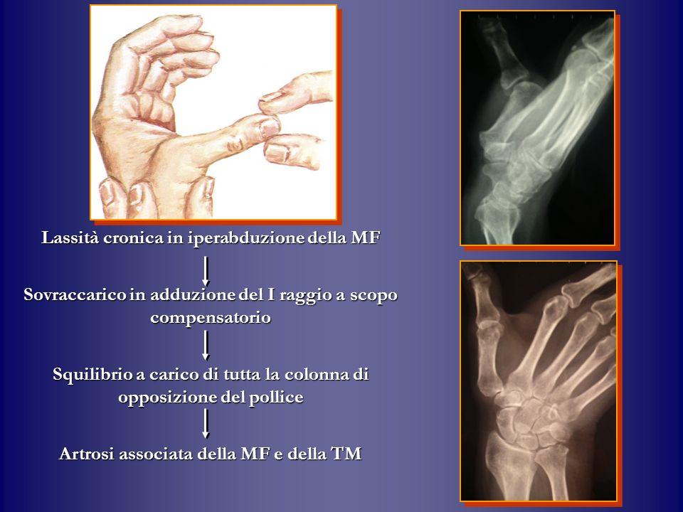 Lassità cronica in iperabduzione della MF