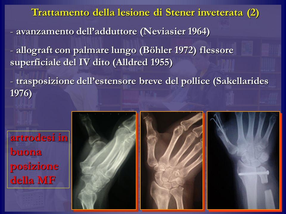 Trattamento della lesione di Stener inveterata (2)