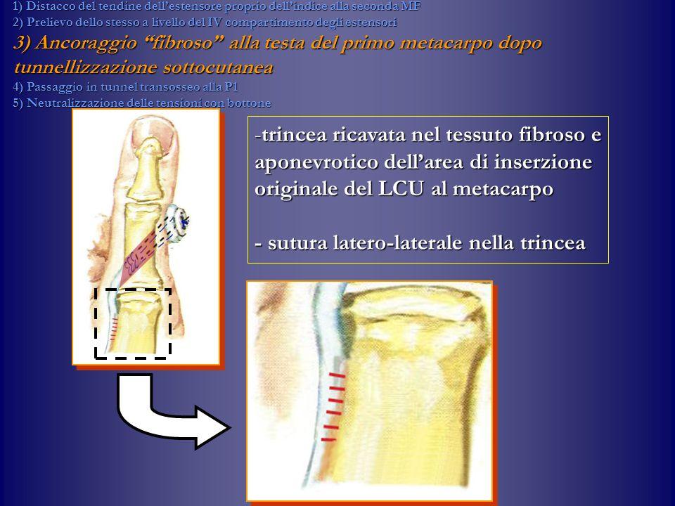- sutura latero-laterale nella trincea