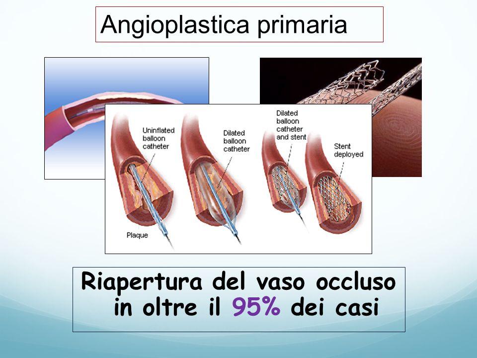 Riapertura del vaso occluso in oltre il 95% dei casi