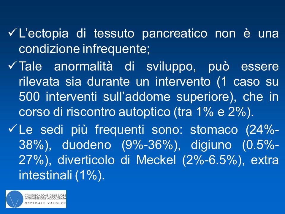 L'ectopia di tessuto pancreatico non è una condizione infrequente;