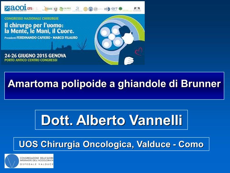 Dott. Alberto Vannelli Amartoma polipoide a ghiandole di Brunner
