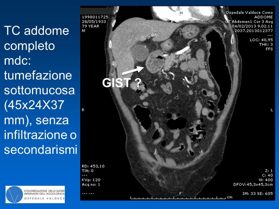 TC addome completo mdc: tumefazione sottomucosa (45x24X37 mm), senza infiltrazione o secondarismi
