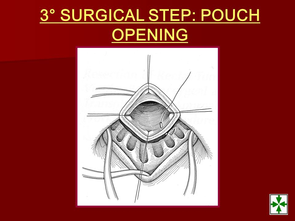 3° SURGICAL STEP: POUCH OPENING