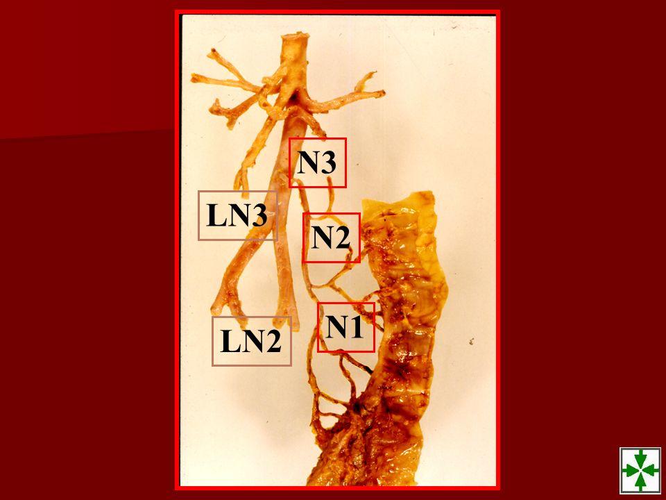 N3 LN3 N2 N1 LN2