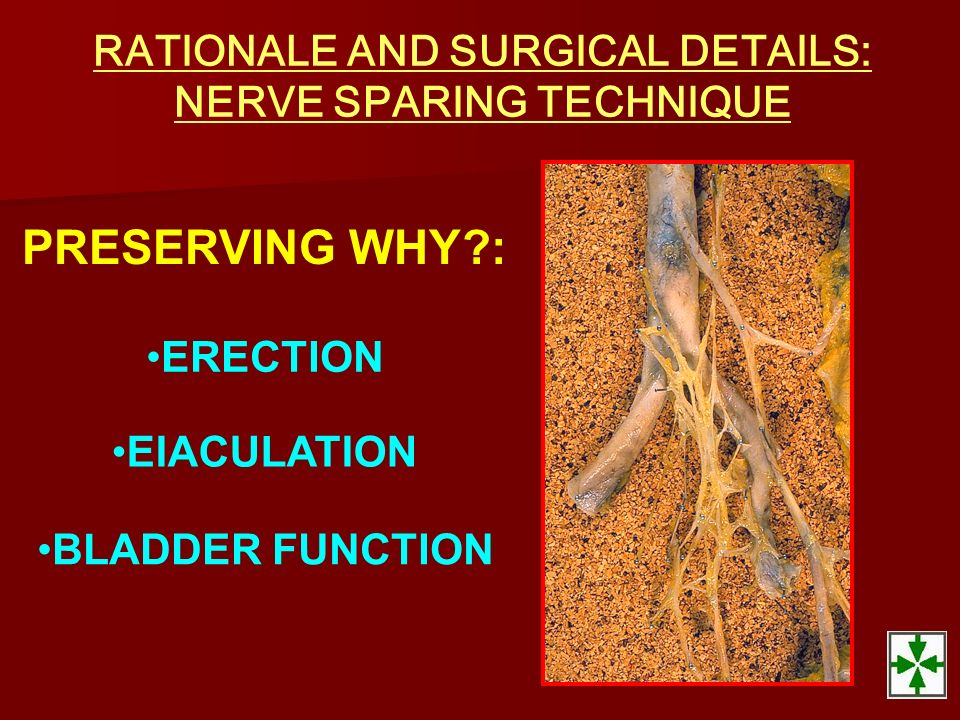 RATIONALE AND SURGICAL DETAILS: NERVE SPARING TECHNIQUE