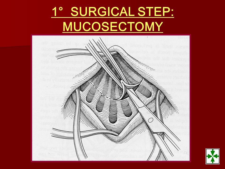 1° SURGICAL STEP: MUCOSECTOMY