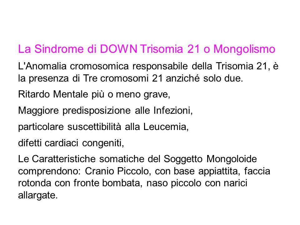 La Sindrome di DOWN Trisomia 21 o Mongolismo