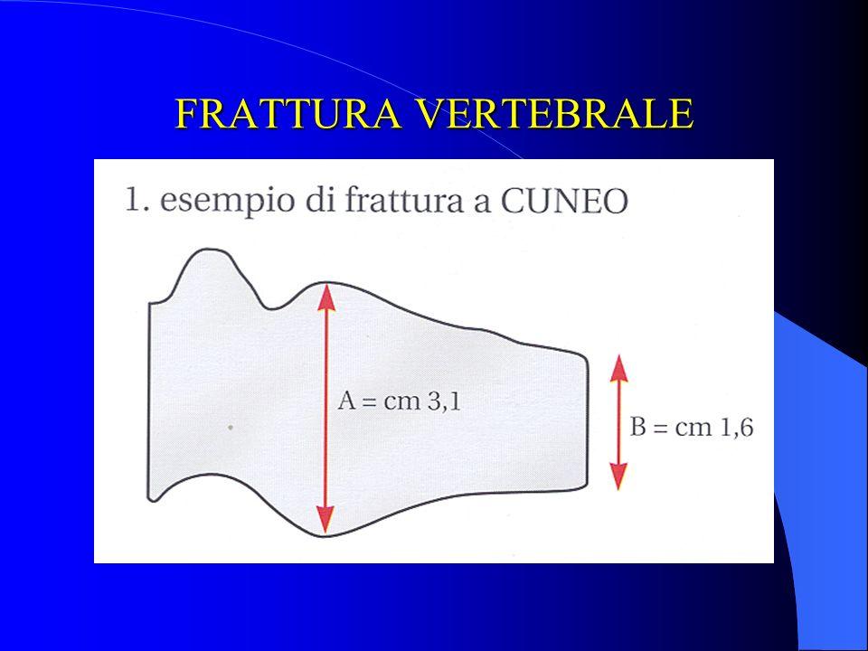 FRATTURA VERTEBRALE