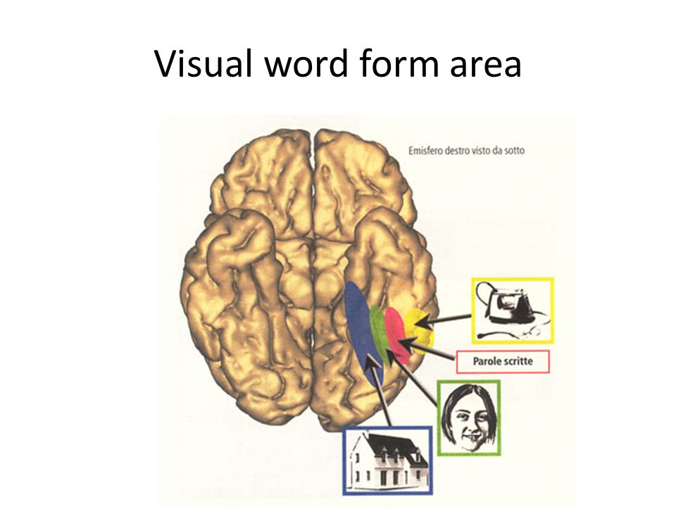 Visual word form area