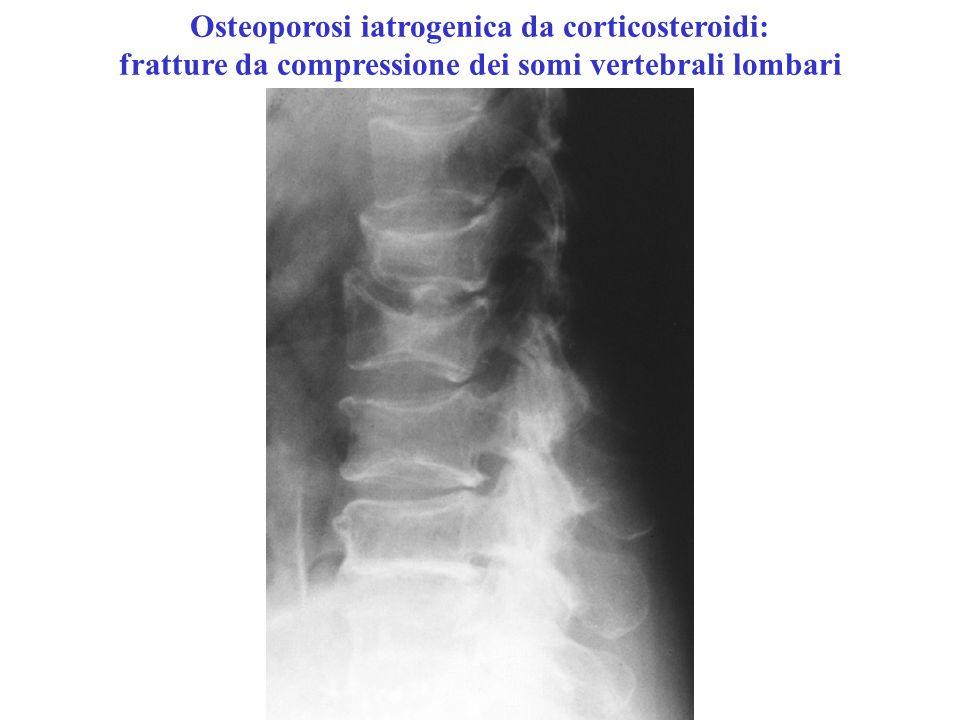 Osteoporosi iatrogenica da corticosteroidi: fratture da compressione dei somi vertebrali lombari