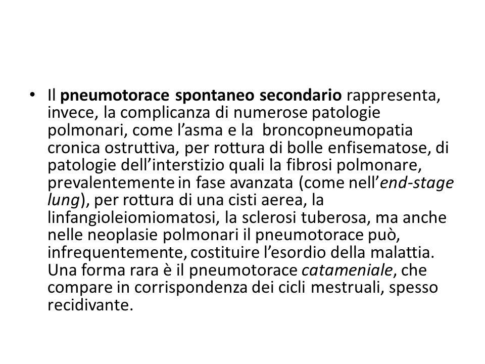 Il pneumotorace spontaneo secondario rappresenta, invece, la complicanza di numerose patologie polmonari, come l'asma e la broncopneumopatia cronica ostruttiva, per rottura di bolle enfisematose, di patologie dell'interstizio quali la fibrosi polmonare, prevalentemente in fase avanzata (come nell'end-stage lung), per rottura di una cisti aerea, la linfangioleiomiomatosi, la sclerosi tuberosa, ma anche nelle neoplasie polmonari il pneumotorace può, infrequentemente, costituire l'esordio della malattia.