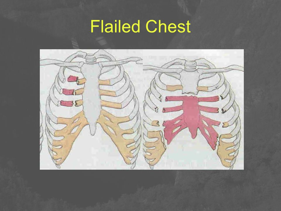Flailed Chest
