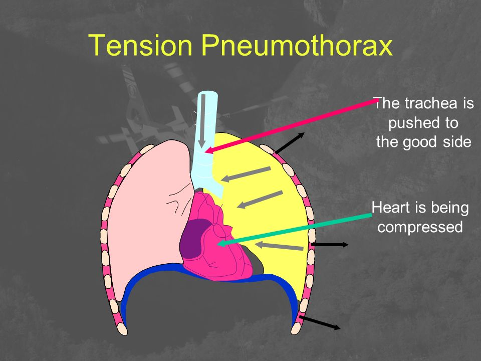 Tension Pneumothorax The trachea is pushed to the good side