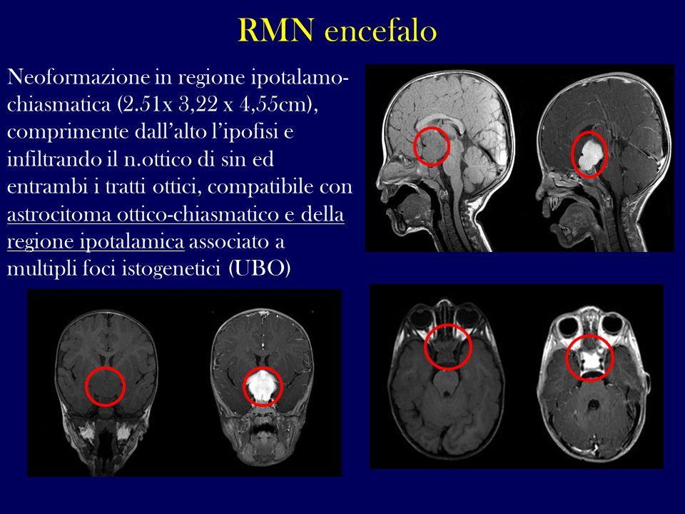 RMN encefalo
