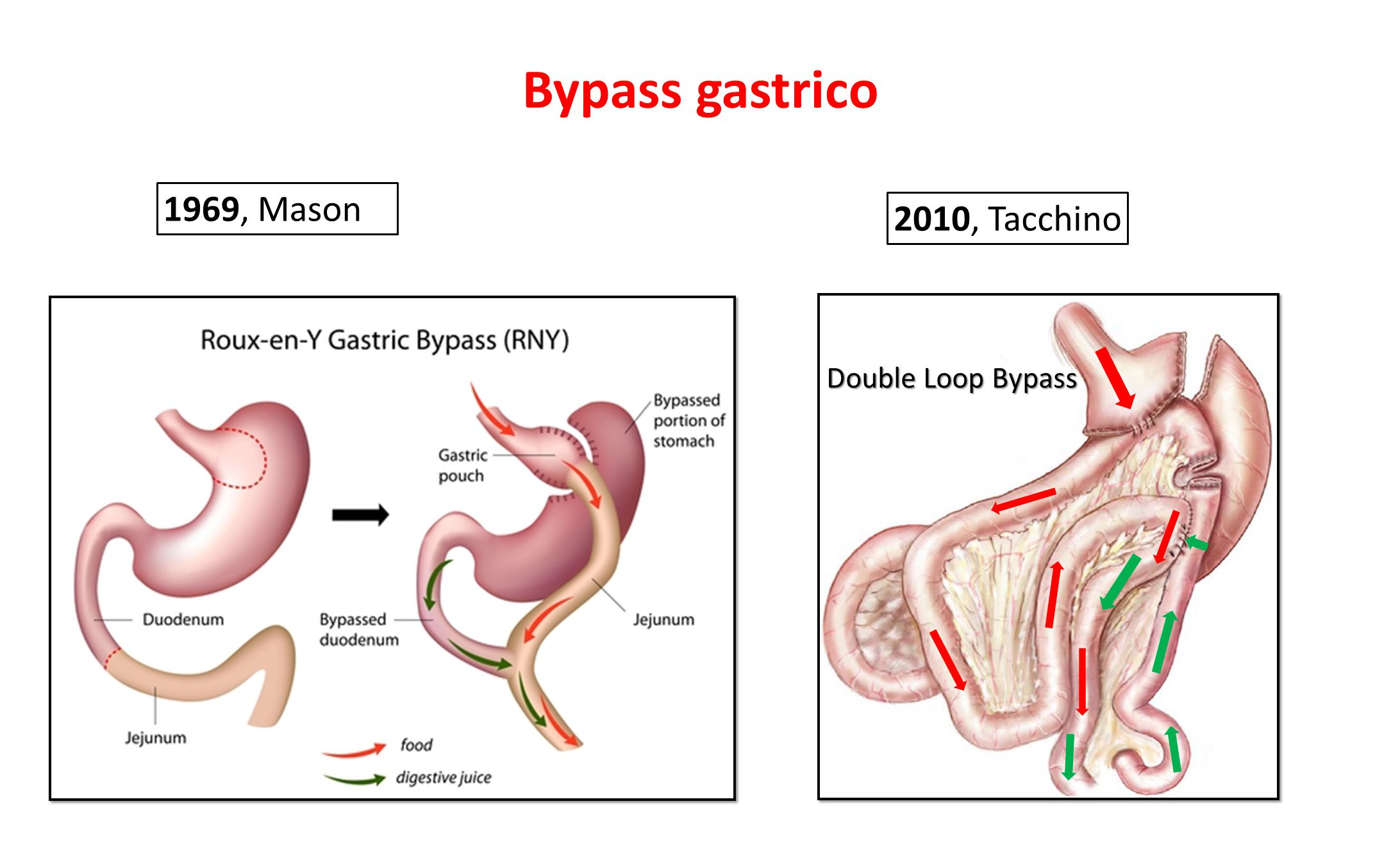 Bypass gastrico 1969, Mason 2010, Tacchino Double Loop Bypass
