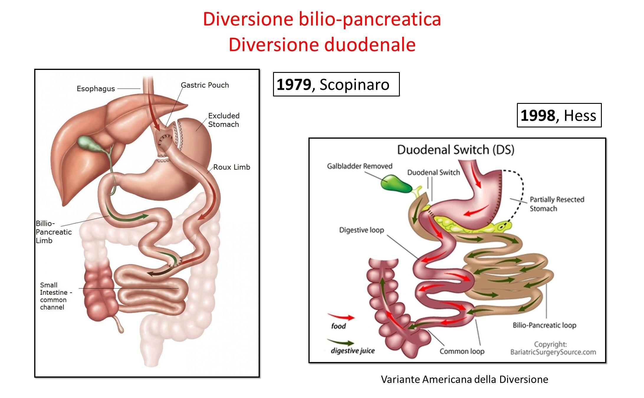 Diversione bilio-pancreatica Diversione duodenale