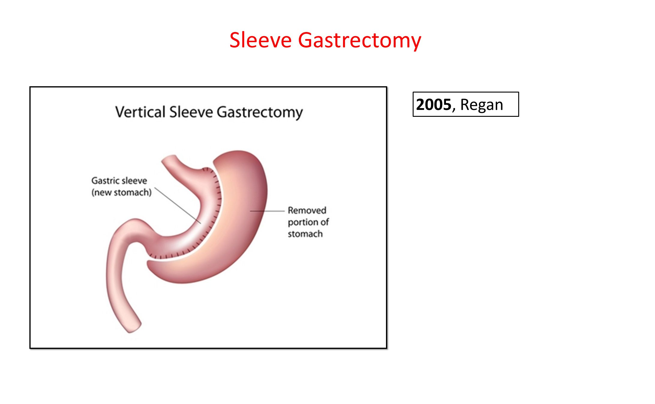 Sleeve Gastrectomy 2005, Regan