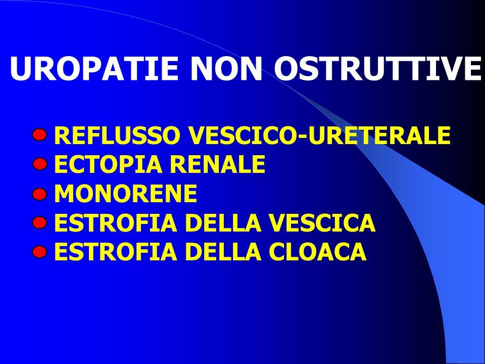 UROPATIE NON OSTRUTTIVE