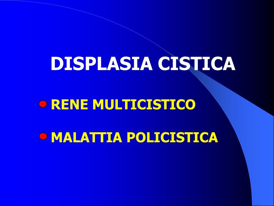 DISPLASIA CISTICA RENE MULTICISTICO MALATTIA POLICISTICA