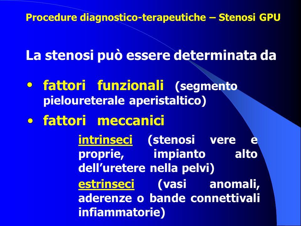 La stenosi può essere determinata da