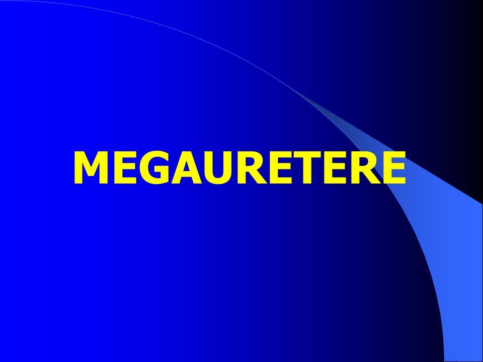 MEGAURETERE