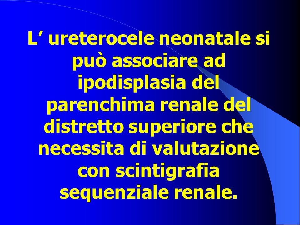 L' ureterocele neonatale si può associare ad ipodisplasia del parenchima renale del distretto superiore che necessita di valutazione con scintigrafia sequenziale renale.