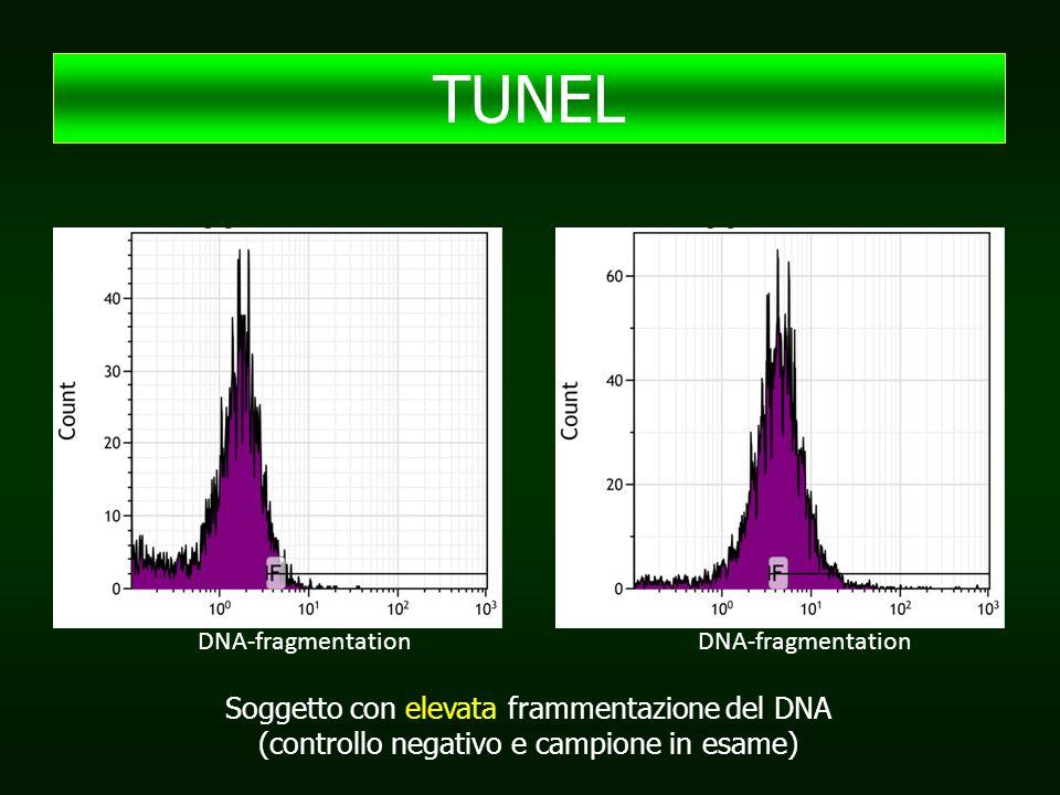 TUNEL Soggetto con elevata frammentazione del DNA