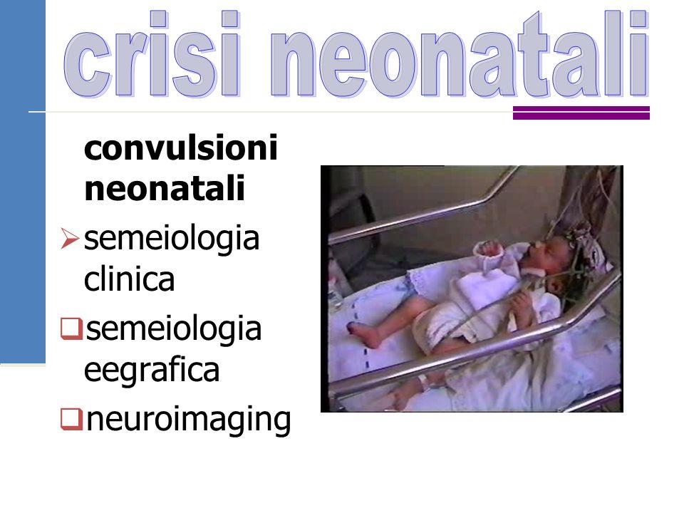crisi neonatali convulsioni neonatali semeiologia clinica