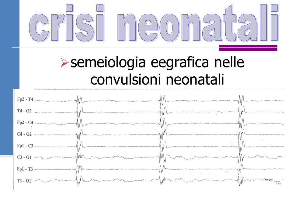 semeiologia eegrafica nelle convulsioni neonatali