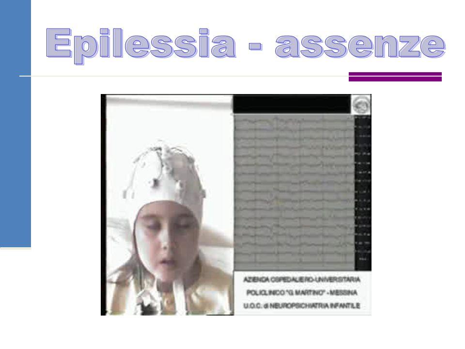 Epilessia - assenze