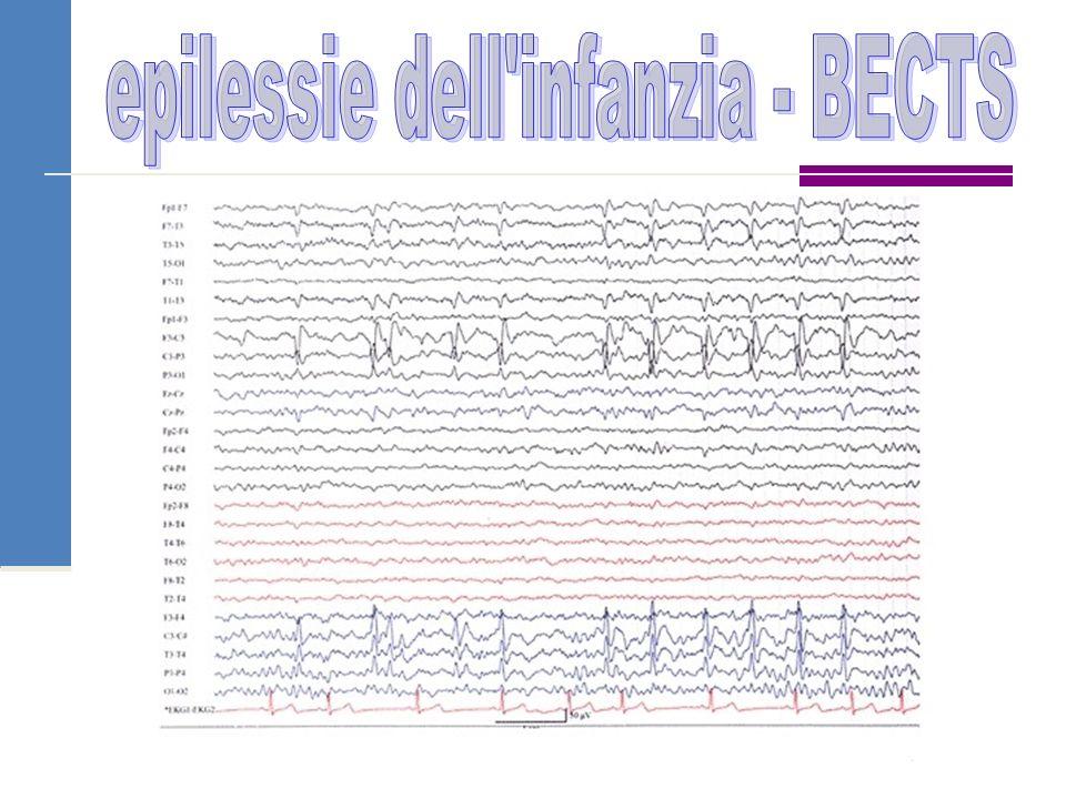 epilessie dell infanzia - BECTS
