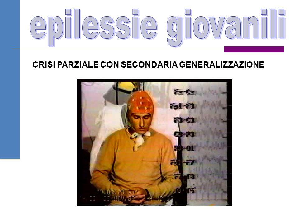 epilessie giovanili CRISI PARZIALE CON SECONDARIA GENERALIZZAZIONE