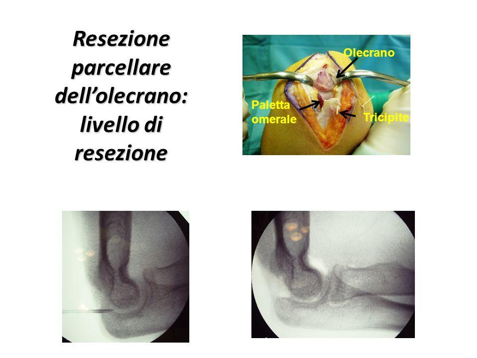 Resezione parcellare dell'olecrano: livello di resezione
