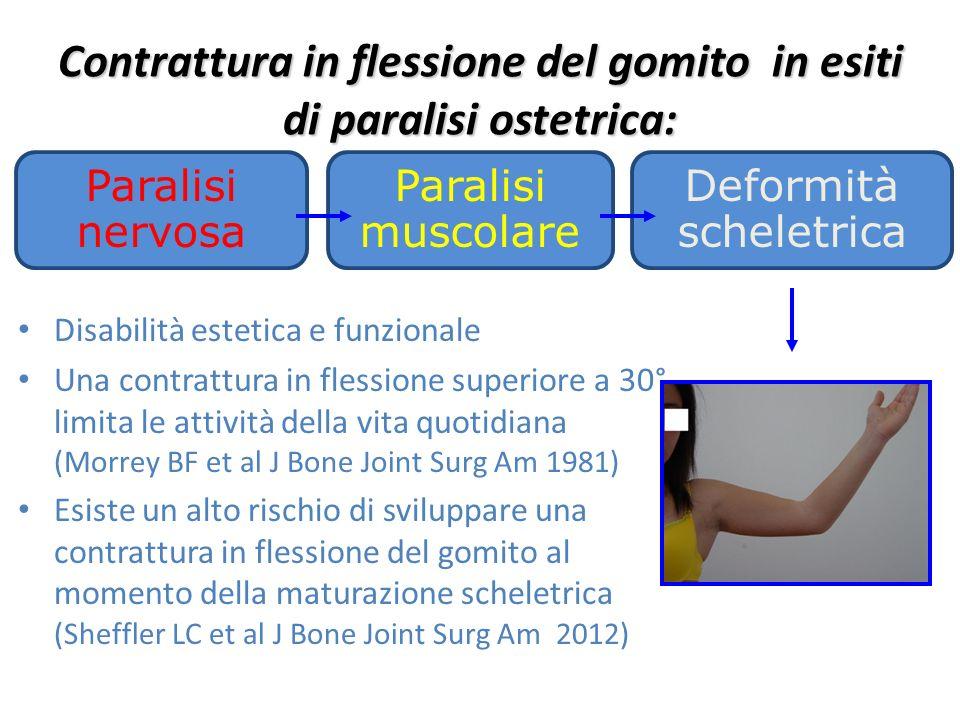 Contrattura in flessione del gomito in esiti di paralisi ostetrica: